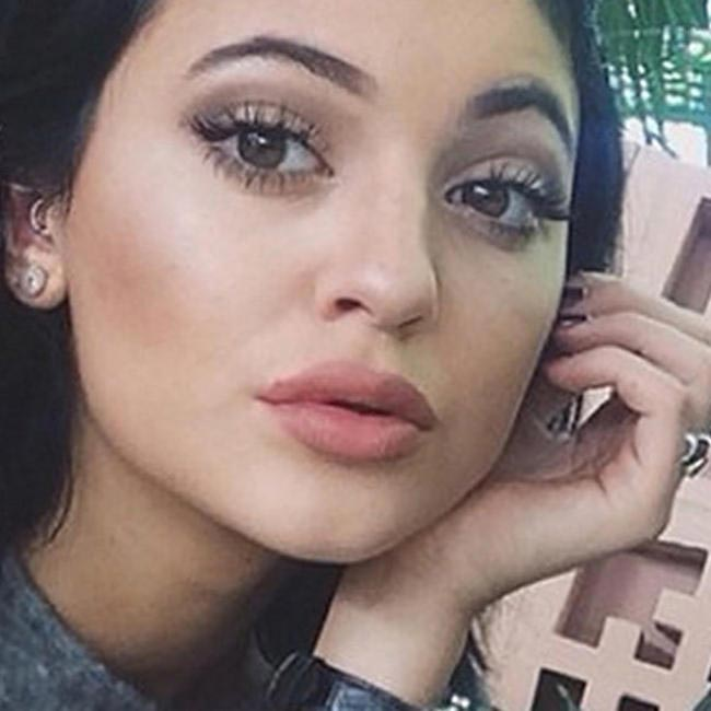 Kylie Jenner and her new lips